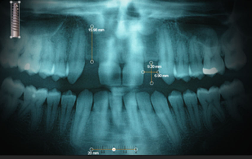 teeth xray photo 2