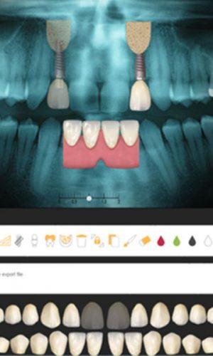 teeth xray photo 1